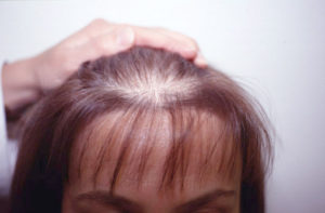 High Testosterone Can Cause Hair Loss www.germainewilliamsbeckles.com